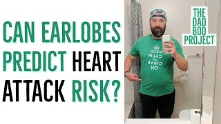 Can your earlobes predict risk for heart attack? If you're under 60 they can!