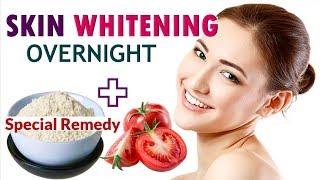 SKIN WHITENING Overnight   Skin Lightening Remedy at Home   Natural Skin Lightening Tips   5-Minute