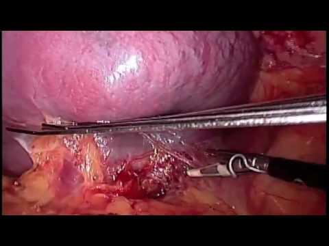 Tecnica Quirurgica De Esplenectomia Abierta Epub