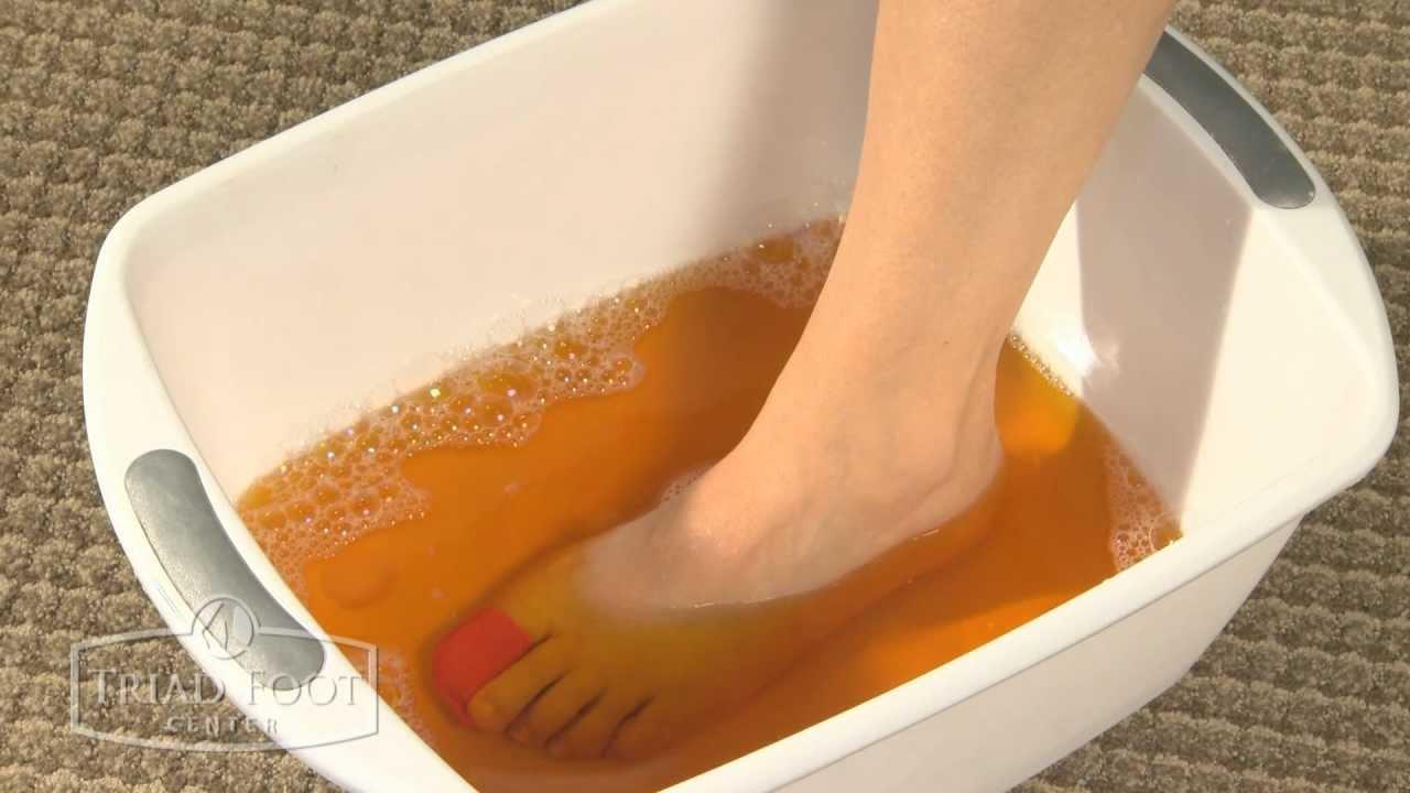 Betadine Soak for Foot - YouTube