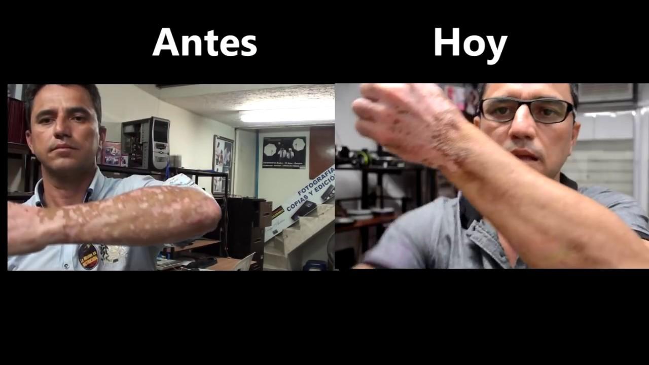 Resultado de imagen para cura del vitiligo antes y despues