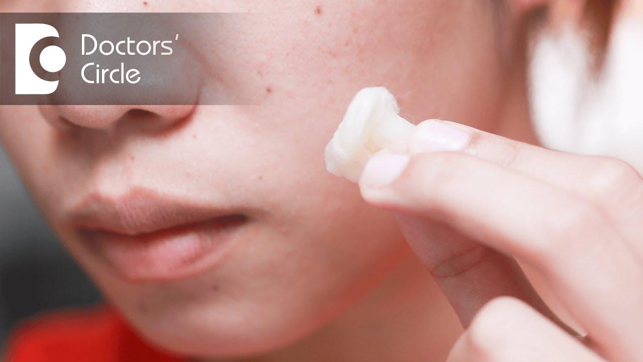 Toothpaste on spots