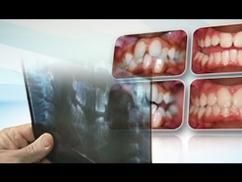 Orthodontics Books