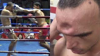 Muay Thai Fighter Gets His Skull CRUSHED in During Fight
