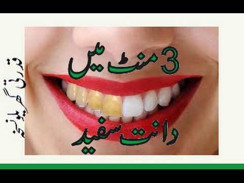 How To Whiten Teeth In 3 Minutes In Urdu How To Clean Teeth Youtube