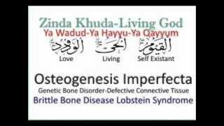 Osteogenesis Imperfecta - Brittle Bones say Shifa