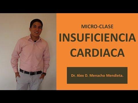 Insuficiencia Cardiaca (Microclase). Criterios de Framingham y Clasificación NYHA.