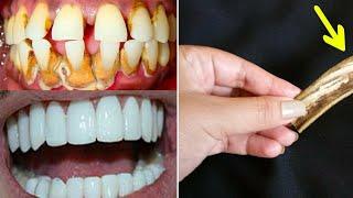 Hallelujah Recitation Hallelujah to whiten teeth in less than 2 minutes
