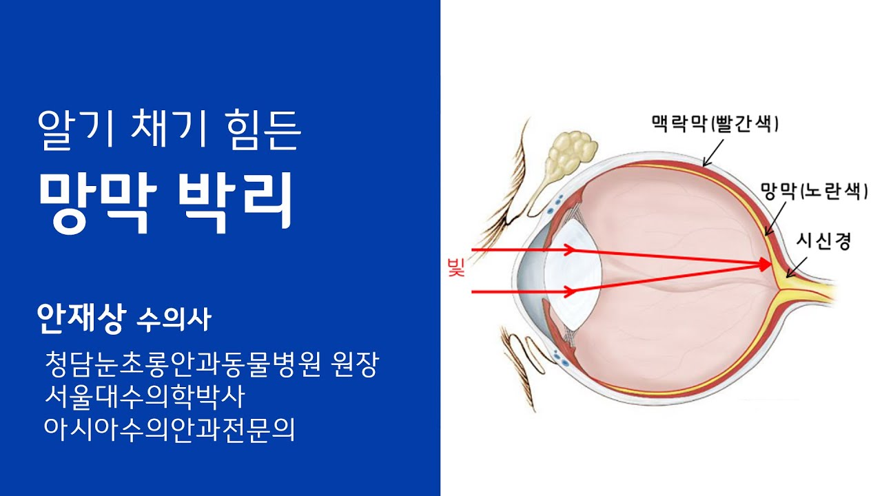 (안과) 보호자가  알아채기 힘든 망막박리 - 청담눈초롱안과동물병원