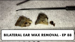 BILATERAL EAR WAX REMOVAL - EP 88