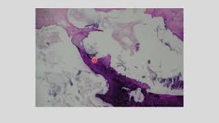 DISH - PENGAPURAN MASSIVE di TULANG BELAKANG DISH (Diffused Idiopathic Skeletal Hyperostosis) adalah.
