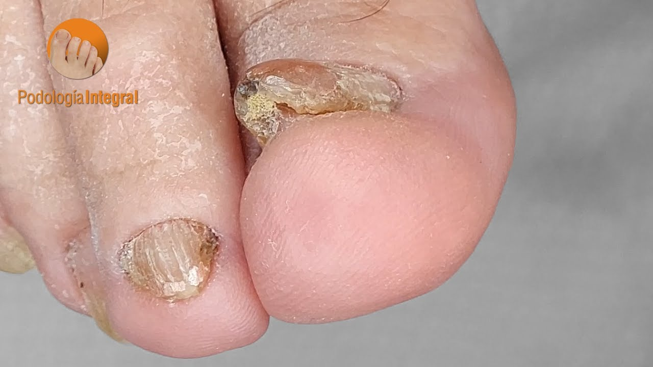 Pedicure for atrophied nail and fungus #podologiaintegral