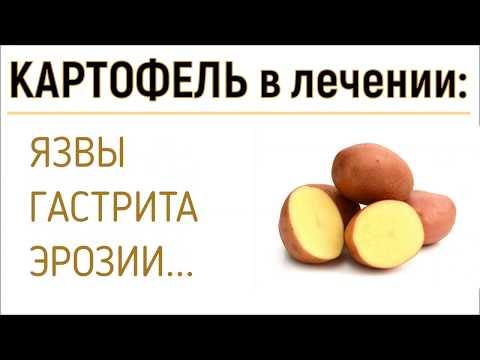 Правила применения сырого картофеля при лечении язвы и гастрита.