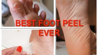 REVIEW: Foot Peel / Baby Foot - Pedicure Socks Thumbnail
