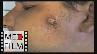 Фурункулы и карбункулы лица © Furuncles and carbuncles face, abscess