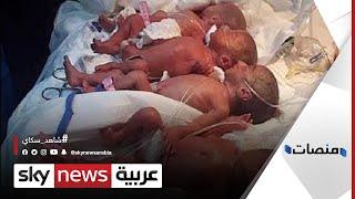 تلد 9 أطفال