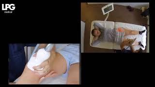 Prise en charge d'un syndrôme fémoro patellaire sur genou droit avec CELLU M6® et HUBER®