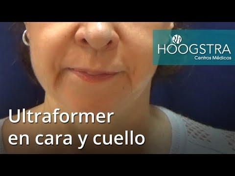Ultraformer en cara y cuello (17069)