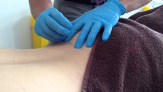Dry Needling: Iliolumbar Ligament