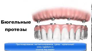 видео протезирование зубов цены