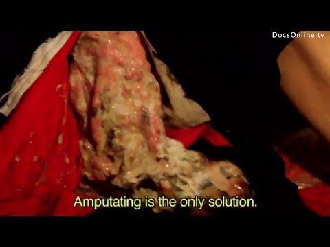 Rotten Leg Disease (Glanders) in humans: Japanese Biological Weapon