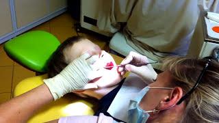 Самая добрая детская стоматология. Удаление молочного зуба это не больно(Этот ролик наглядно отвечает на часто задаваемый вопрос: