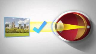 What is Astigmatism? Peter Ivins Eye Care - Glasgow Optometrist Specialist Contact Lens Practice