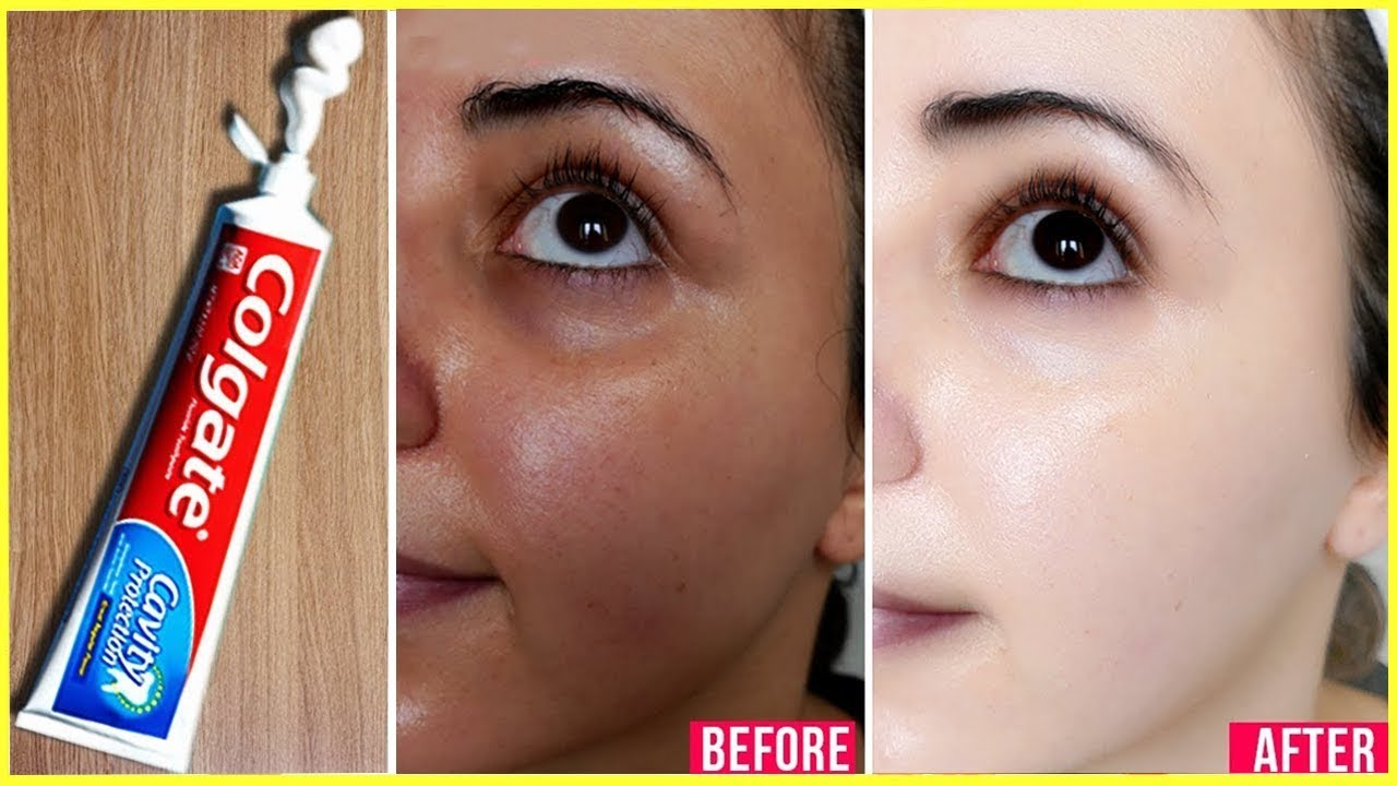 Apply Toothpaste on Your Skin and See Magical Result within 1 Hour ¦Amazing Toothpaste Beauty Hacks