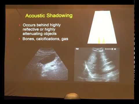 Point of care Ultrasound for tropical diseases