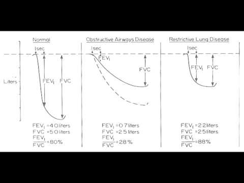 Obstructive vs. Restrictive Lung Disease