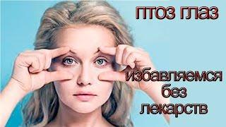 Птоз глаз и применение флуревитов