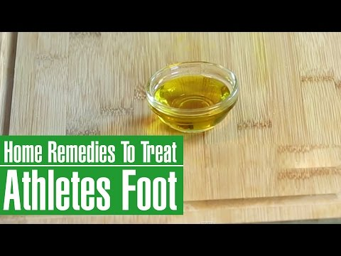 3 Best HOME REMEDIES To Treat ATHLETE'S FOOT