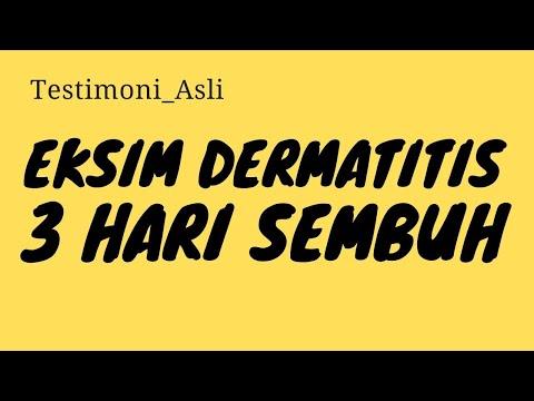 obat-penyakit-gatal,-eksim/dermatitis-paling-ampuh-||-cara-alami-mengobati-eksim/dermatitis-menahun