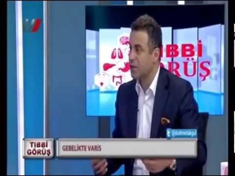 Prof. Dr. Ahmet AKGÜL - Kalp Damar Varis Çorabı - Gebellik Ve Hamilelik Te Varis çorabı Kullanımı