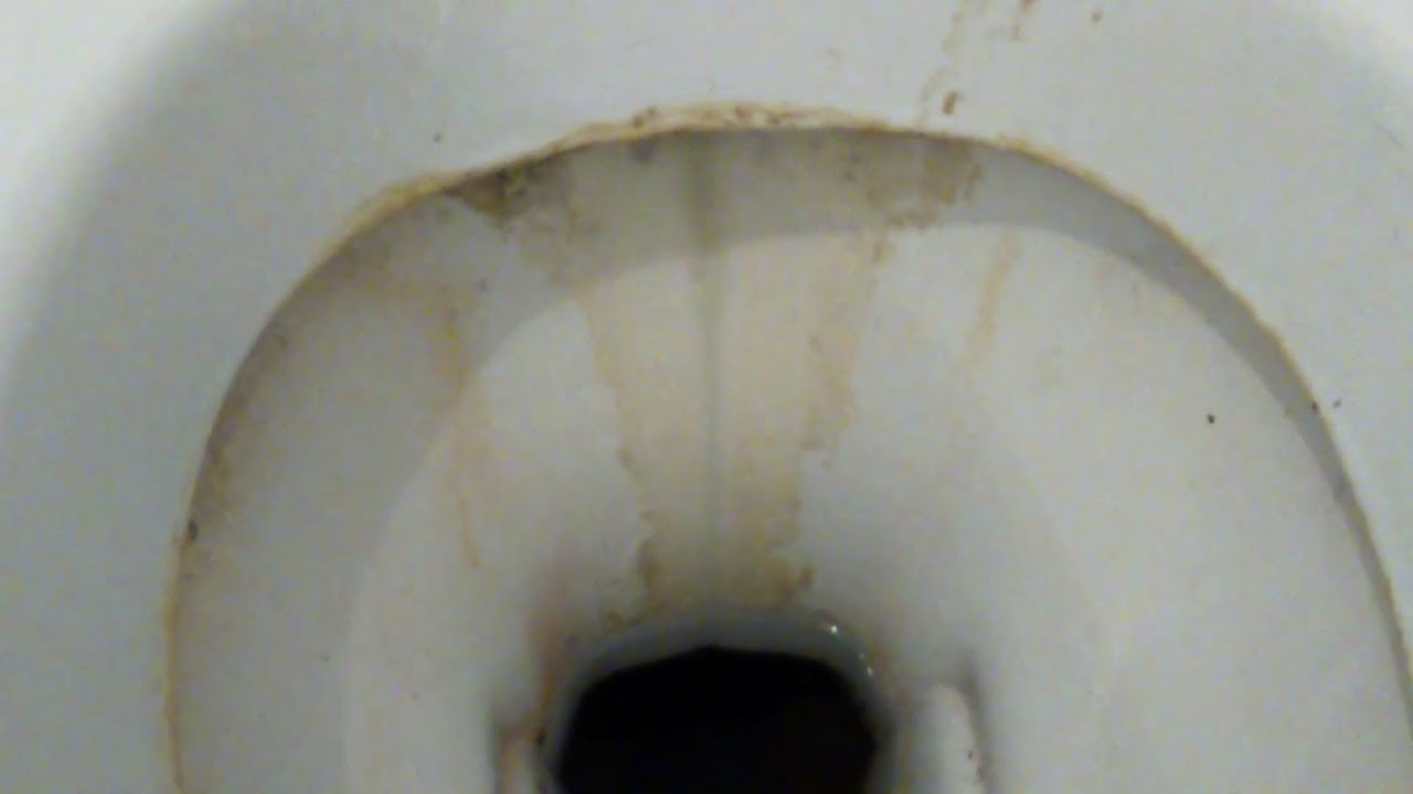 Comment Nettoyer Le Fond Des Wc Remove Tartar Plate In Toilet Bowl