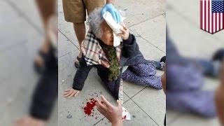 화이트파워가 뭐길래..한국인 할머니, 산책하다 한 백인여성에게 공격당해 피 철철