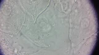 видео Анализ мокроты