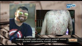 #مانشيت_القرموطي |  مريض سرطان نادر يناشد وزير الصحة و محمد_رمضان لتبني حالته