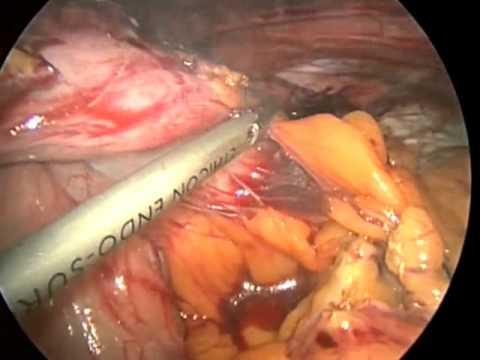 Laparoscopic Hiatal Hernia Repair With Redo Fundoplication For Dysphagia  Due To A Slipped