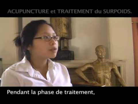 acupuncture pour maigrir youtube. Black Bedroom Furniture Sets. Home Design Ideas