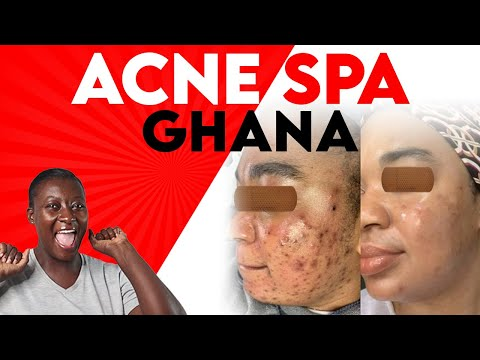 ACNE SPA GHANA LAUNCH  #acnespaghana