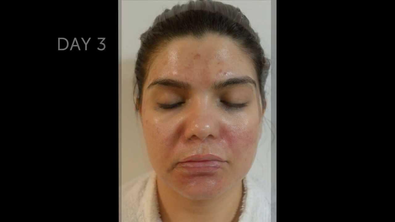 Dermaquest Makeup Reviews Mugeek Vidalondon