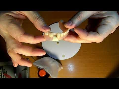 Как закрепить зубные протезы в домашних условиях