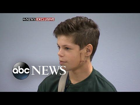 13-year-old shark attack survivor returns to school