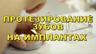 Стоматология в Киеве. Протезирование зубов на имплантатах(, 2016-02-19T09:29:03.000Z)
