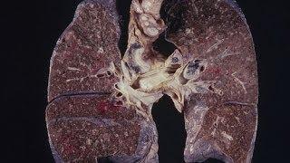 ما هي أعراض سرطان الرئة؟؟