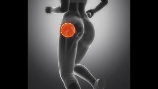 Que tipo de ejercicio debería hacer si tengo trocanteritis?