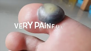 Big blood blister after liquid nitrogen cryotherapy