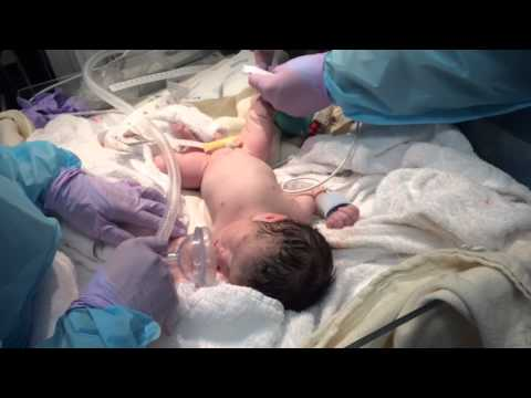 twin-babies-c-section-birth---36-weeks