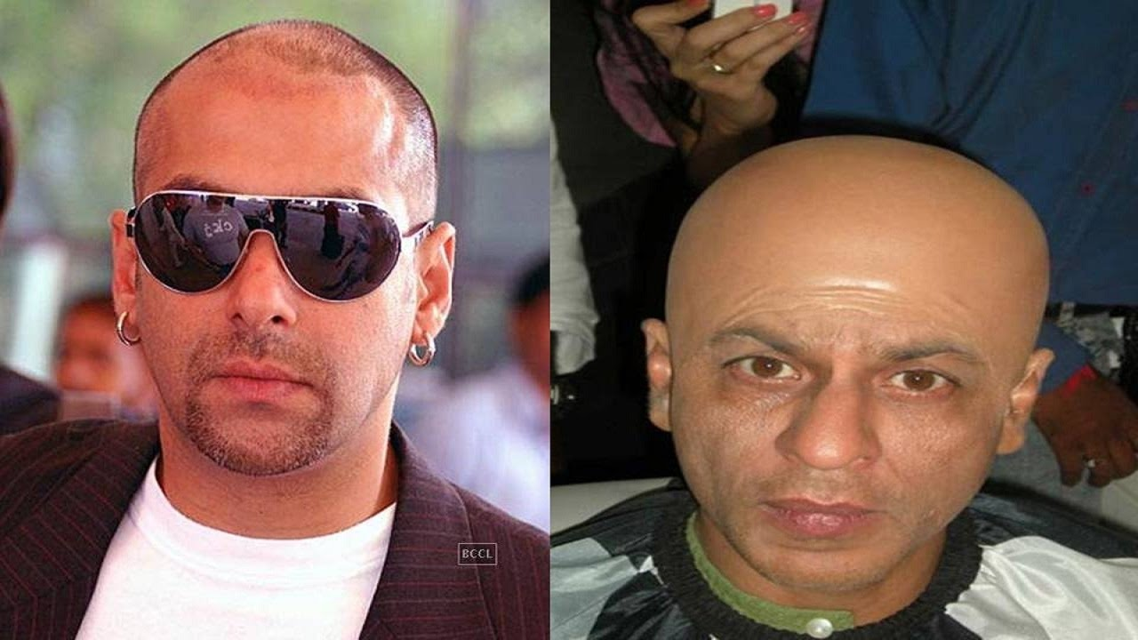 10 Bollywood Stars Who Underwent For Hair Transplant Surgery Youtube